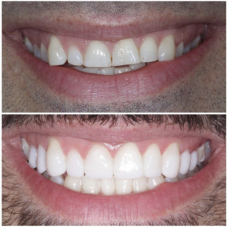 Composite Bonding/Veneers